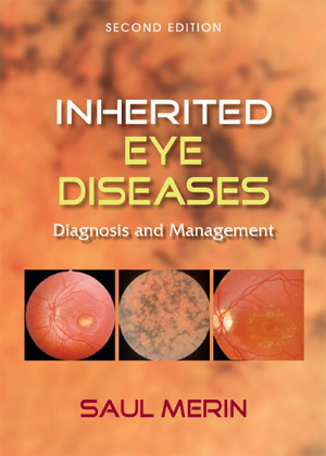 inherited eye diseases